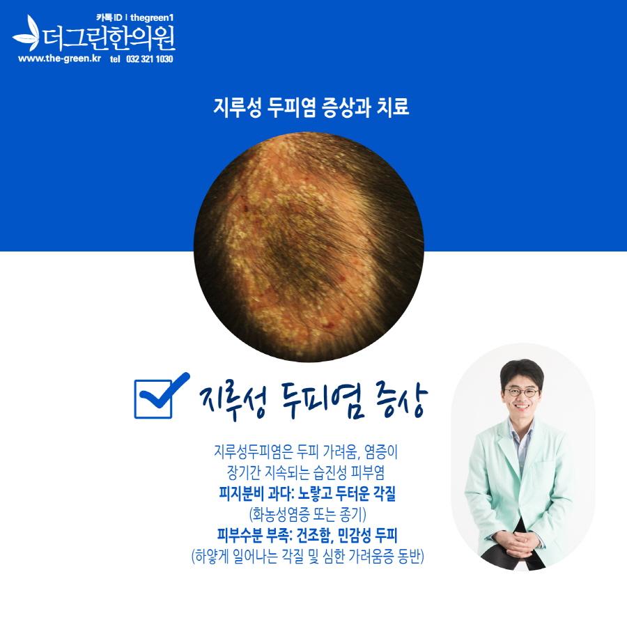 부천지루성두피염 (2).jpg