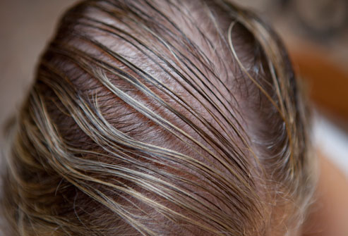 webmd_rf_photo_of_thin_hair_on_crown.jpg