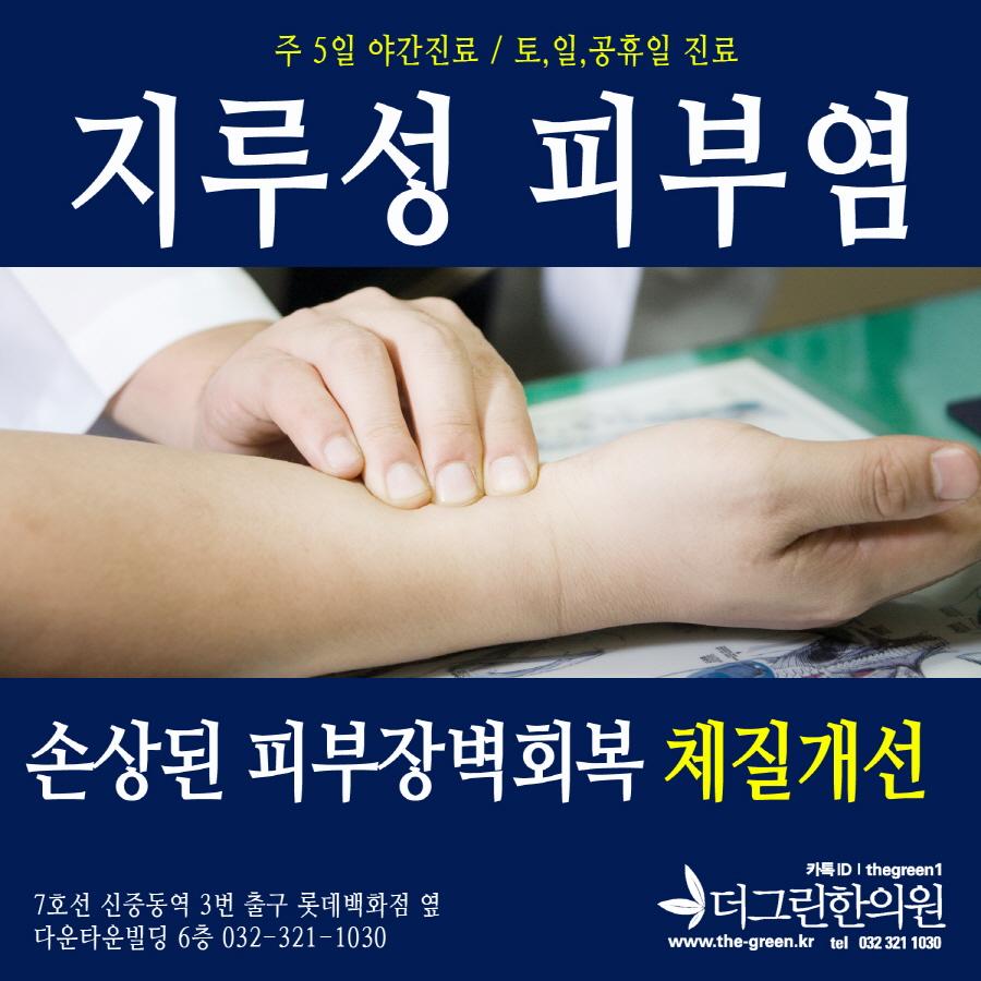 부천지루성피부염 (1).jpg
