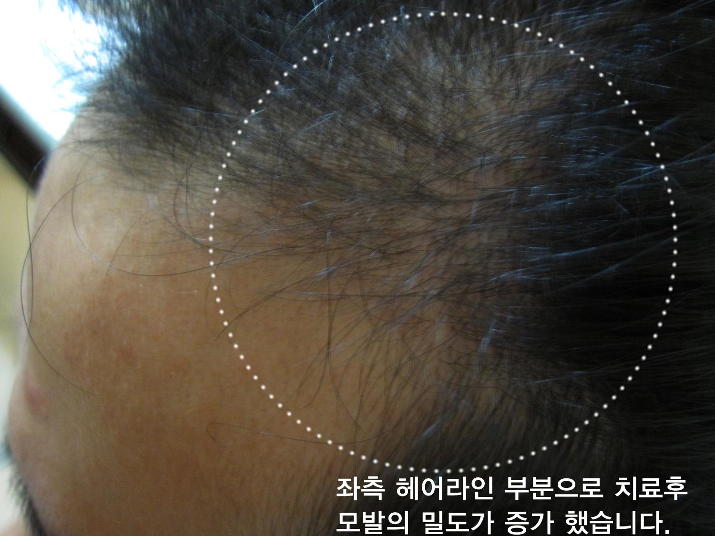 남성형탈모 (4).jpg
