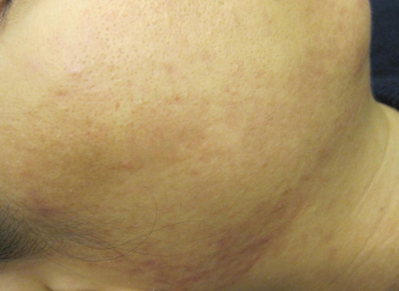 여성턱여드름 (4).jpg