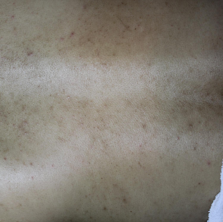 등여드름 (3).jpg